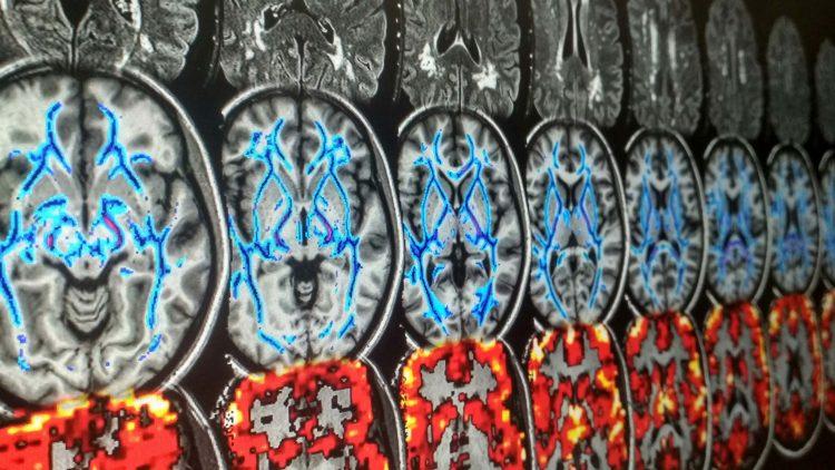 NeuroPhysIm – um caminho que encurta a luta contra a doença dos pequenos vasos